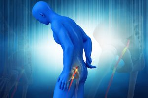 Suffering from sciatica? Chiropractic care can help.